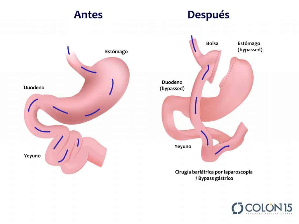 bypass gastrico colon sevilla