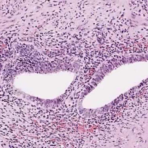 endometriosis colon sevilla