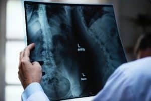radiologia colon15 sevilla