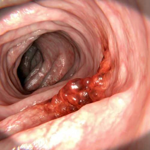 colon cancer sevilla