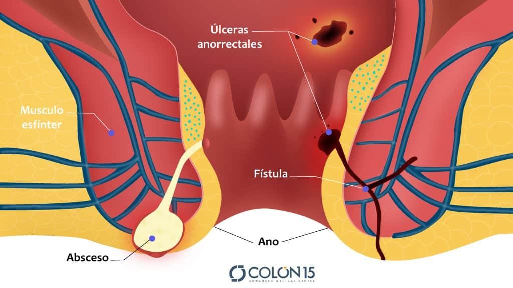 fistula absceso anal coln sevilla