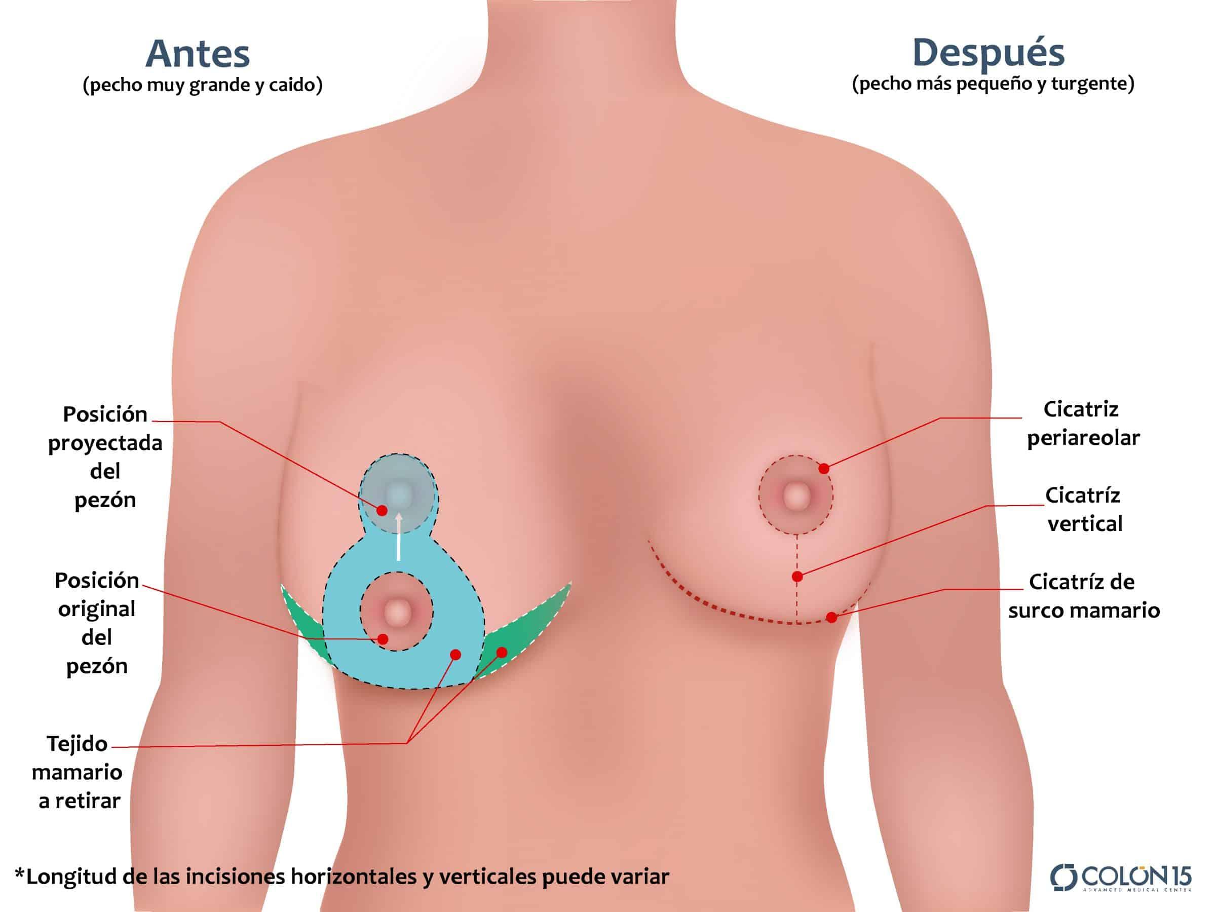 mamoplastia reduccion colon sevilla