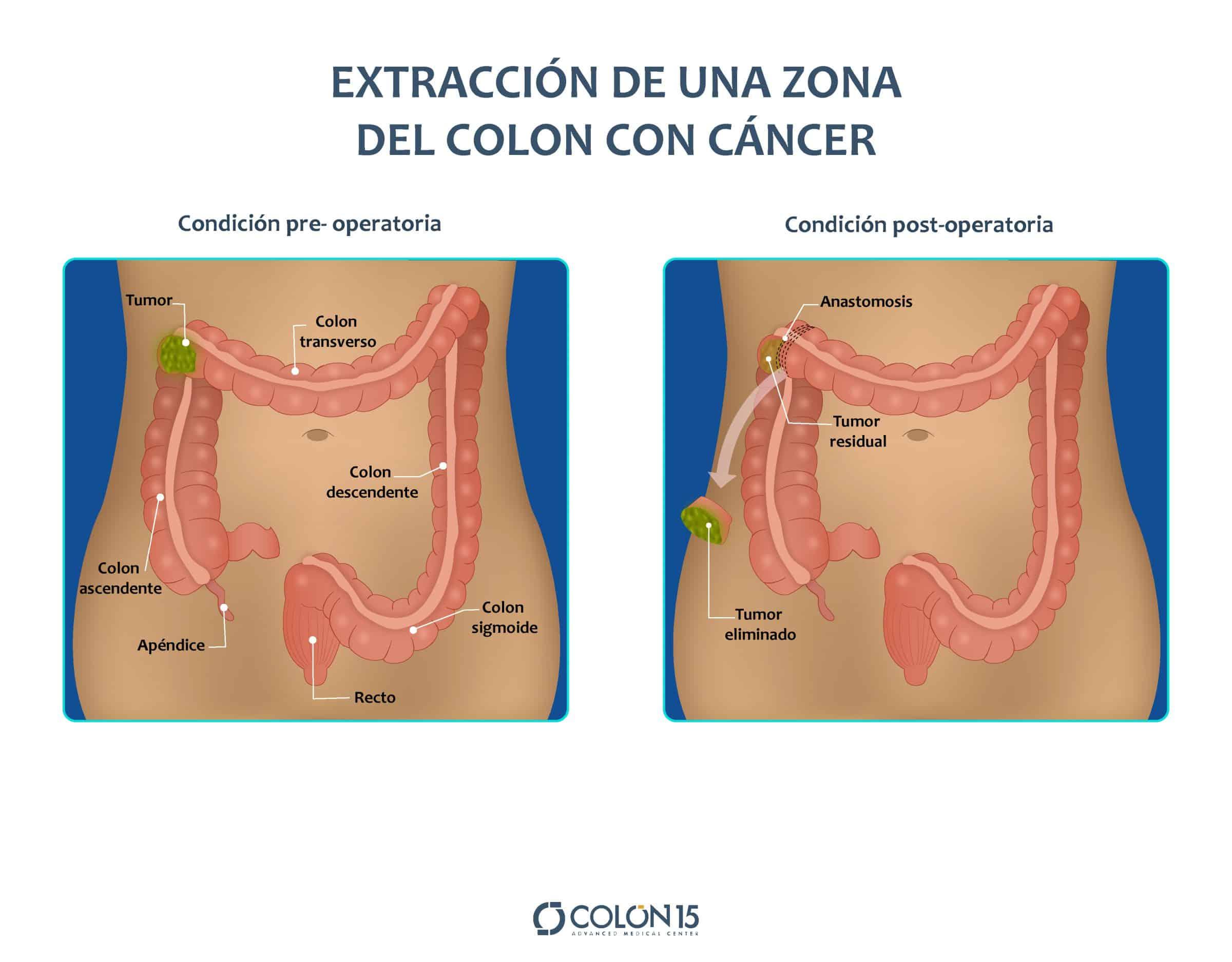 tratamiento cancer colon colon sevilla
