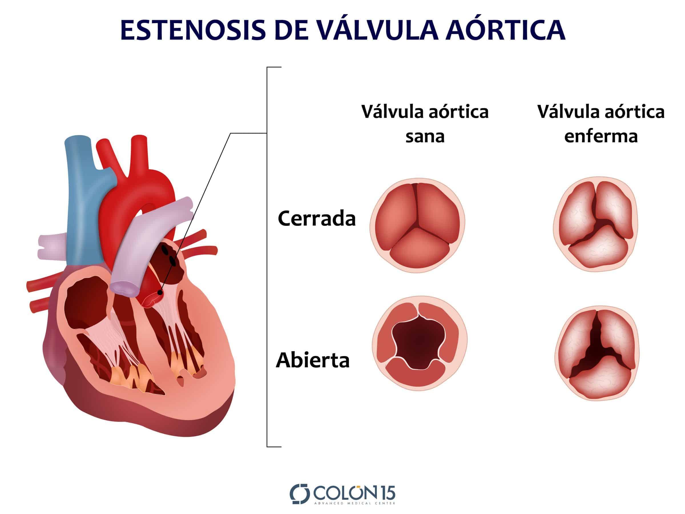 estenosis de valvula aortica