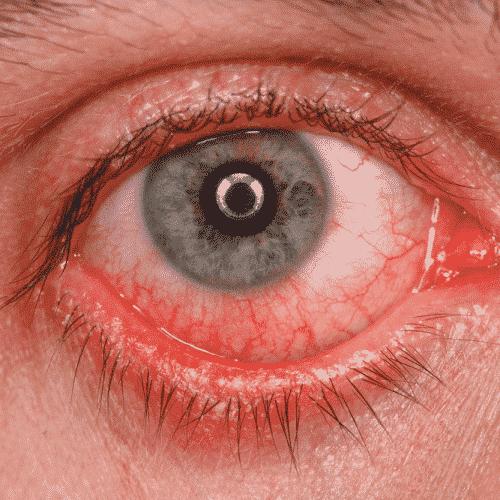 posibles causas ojo rojo