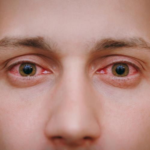 recomendaciones ojo rojo