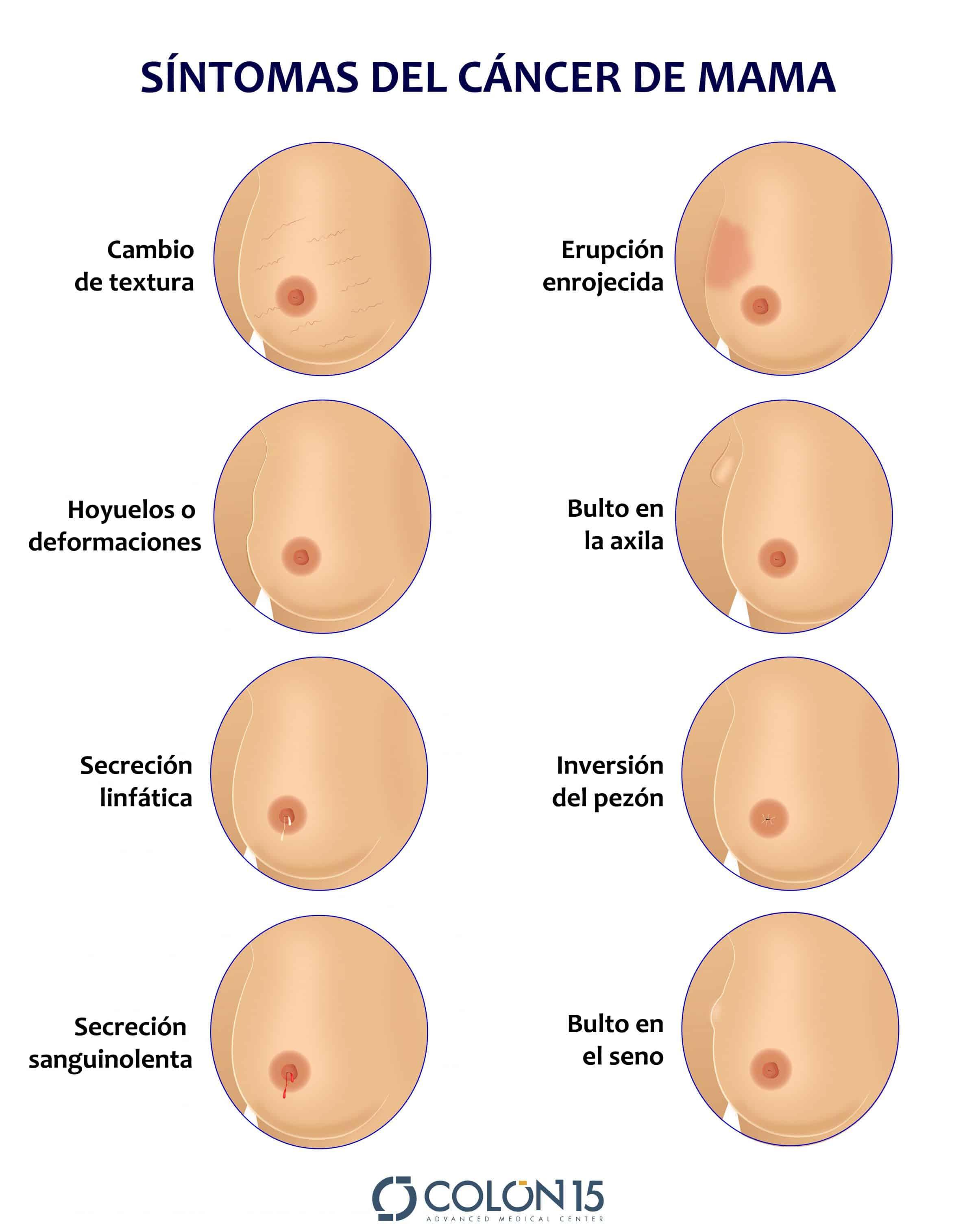 cancer de seno pezon