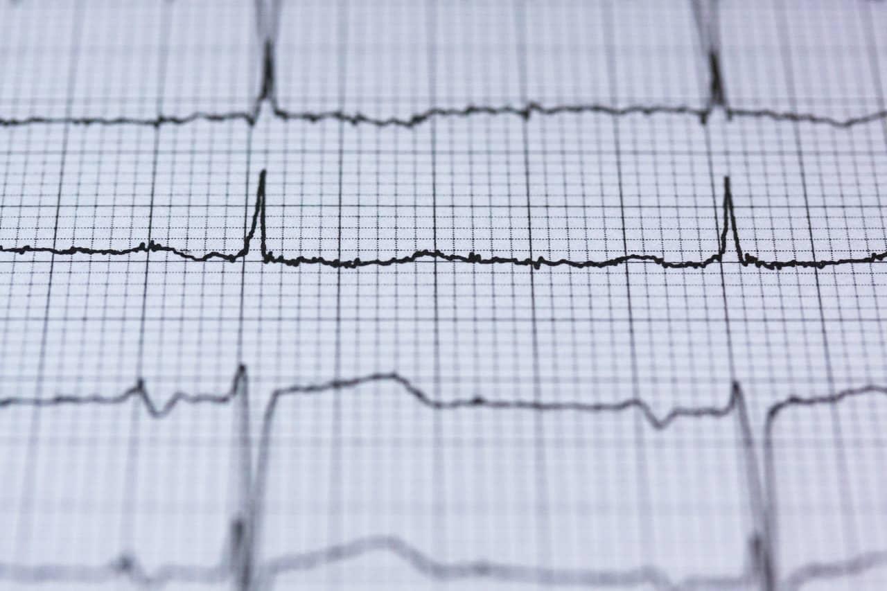 chequeo cardio sevilla colon