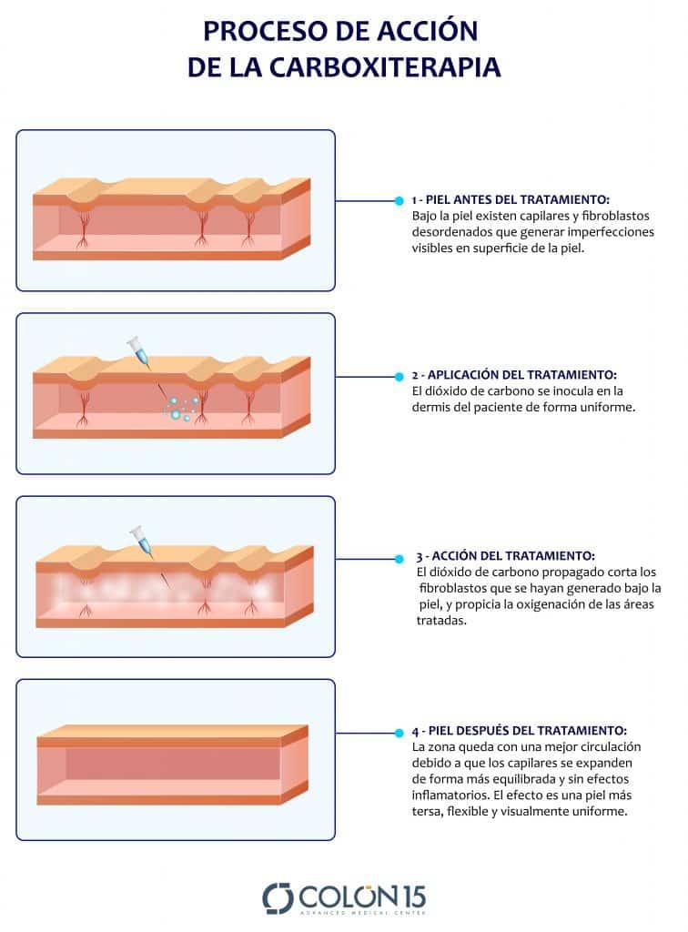 1 - PIEL ANTES DEL TRATAMIENTO: Bajo la piel existen capilares y fibroblastos desordenados que generar imperfecciones visibles en superficie de la piel. 2 - APLICACIÓN DEL TRATAMIENTO: El dióxido de carbono se inocula en la dermis del paciente de forma uniforme. 3 - ACCIÓN DEL TRATAMIENTO: El dióxido de carbono propagado corta los fibroblastos que se hayan generado bajo la piel, y propicia la oxigenación de las áreas tratadas 4 - PIEL ANTES DESPUÉS TRATAMIENTO: La zona queda con una mejor circulación debido a que los capilares se expanden de forma más equilibrada y sin efectos inflamatorios. El efecto es una piel más tersa, flexible y visualmente uniforme.