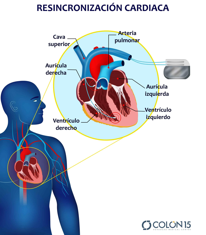 Resincronización cardiaca a través de un dispositivo cardiovasculares DAI