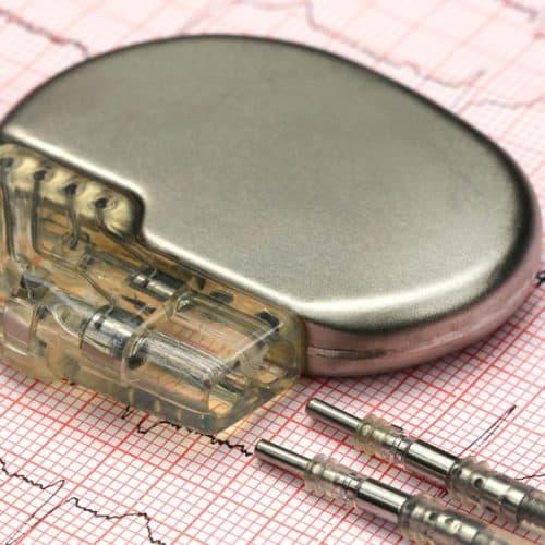 Un desfibrilador automático implantable o DAI es un equipo médico pequeño, muy similar a un marcapasos, que registra constantemente la función eléctrica del corazón en búsqueda de eventos cardiacos muy específicos como la taquicardia o la fibrilación ventricular para detenerlas en base a su intensidad.