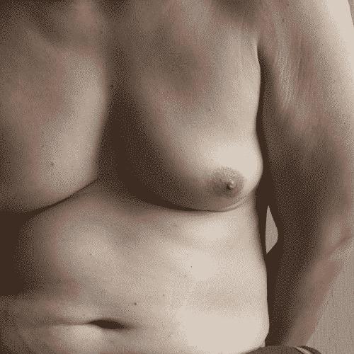 Producto de los cambios hormonales propios de la edad se observa un descenso de los niveles de testosterona y un aumento en la aromatización periférica de testosterona a estrógenos, lo que incrementa los niveles de estrógeno, unido con la predisposición a la obesidad, lo cual hace al hombre de edades avanzadas propenso a sufrir de esta condición. Afecta entre un 30 a un 57% en los hombres mayores de 45 años de edad.
